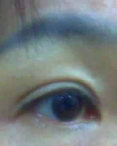 瞼のたるみ